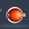 Cataract Surgery: Intraocular Lens Choices