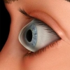 Contact Lenses for Keratoconus