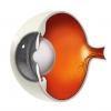June is Cataract Awareness Month