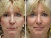 los angeles non surgical facelift