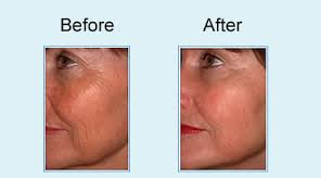 co2 fractional smoothing skin before after photo