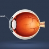 August is Cataract Awareness Month