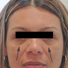 Two Treatments for Under-Eye Hollows